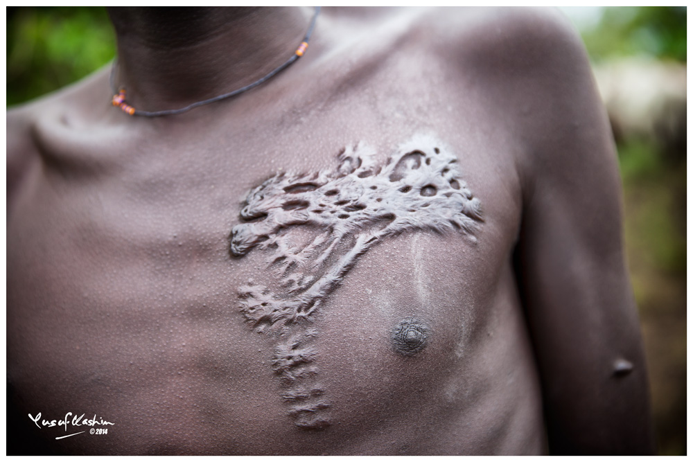 Scarification to decorate their bodies is common among Suri men and women.